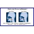 Orthèse-anti-ronflement-et-Apnée-du-sommeil-ONIRIS